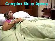 complex sellp apnea