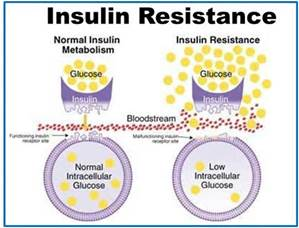insulin resistence