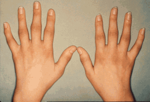 Rheumatoid-Arthritis-early-symptoms-300x205